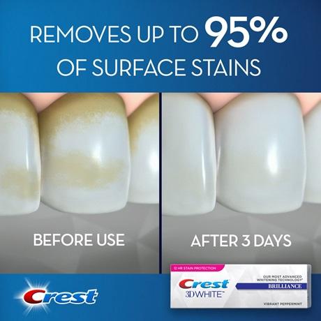 crest brilliance toothpaste - teeth whitening toothpaste