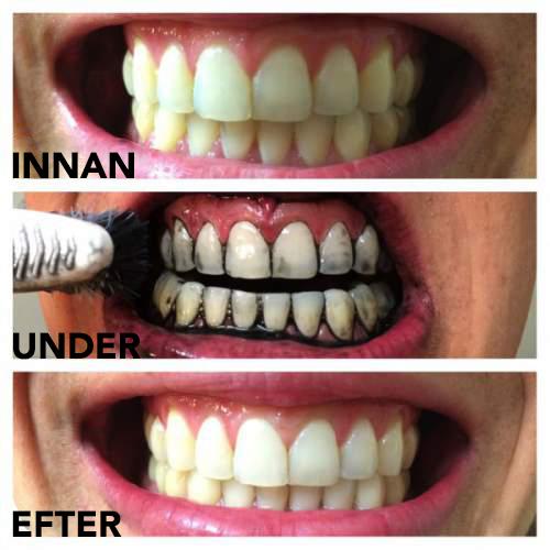 Vita dina tänder med aktivt kol innan och efter