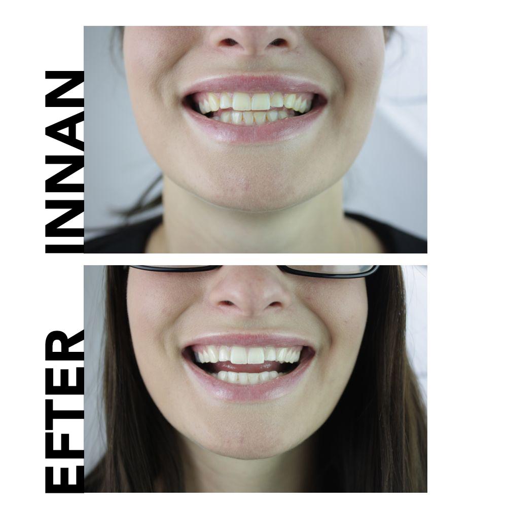 naturliga tänder vitare tandkräm före och efter
