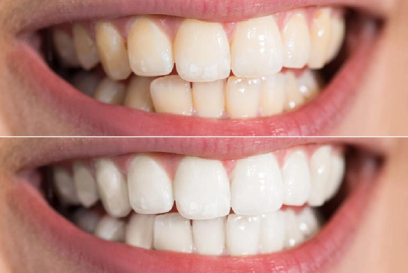 förhindra tandfläckar